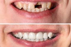 Dental Restoration Image