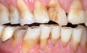 Bruxism Treatment Ahmedbad