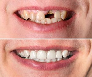 dental restoration in ahmedabad