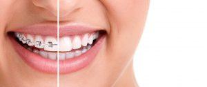 orthodontist in ahmedabad