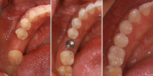 wisdom tooth extraction ahmedabad