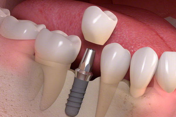 Single Tooth Dental Implant Process & Cost In India