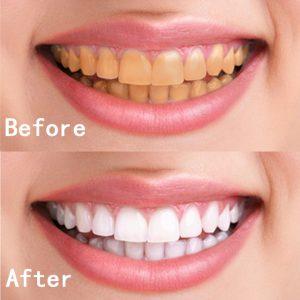 teeth whitening cost in ahmedabad