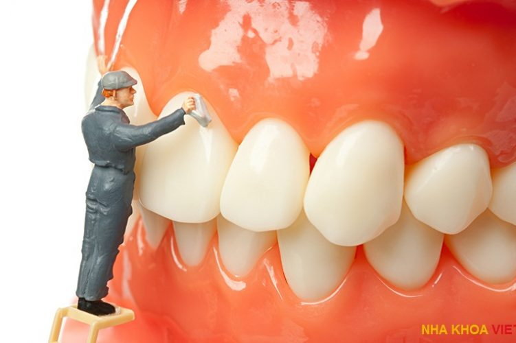 Dental Scaling & Its Benefit