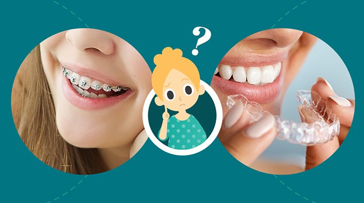 9 Myths About Orthodontic Treatment