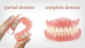 Partial Denture doctor Ahmedabad
