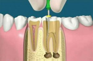 root canal treatment ahemdabad