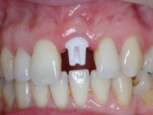 Single Tooth Dental Implant Process and Cost In Ahmadabad