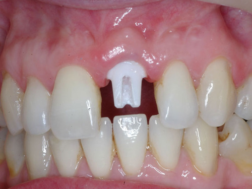 Single Tooth Dental Implant Process and Cost In Ahmadabad India
